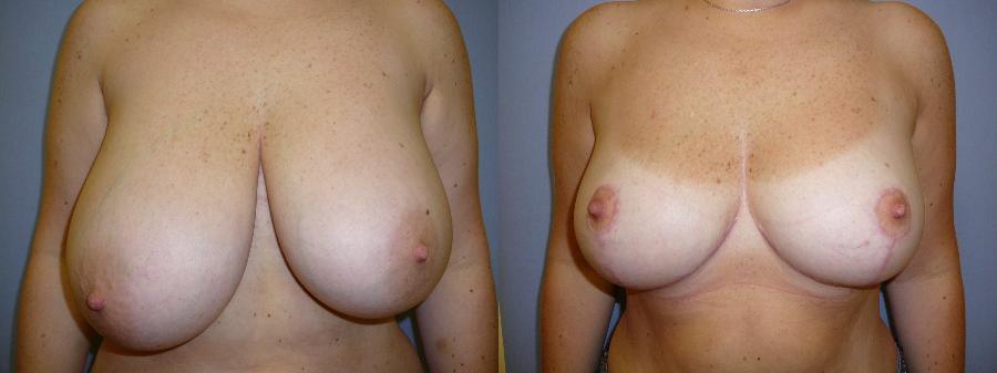 Die plastischen Operationen der Brust in donezke