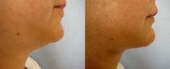 liposukce brady