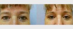 Korekce očníh víček