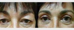 Korekce očních víček