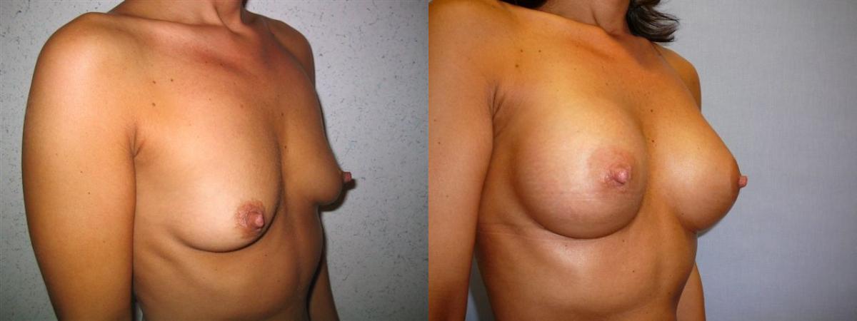 Naked jewish women wwii